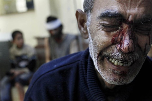 A man mourns the death of his daughter in Aleppo (Photo: Javier Manzano / AFP / Getty Images)