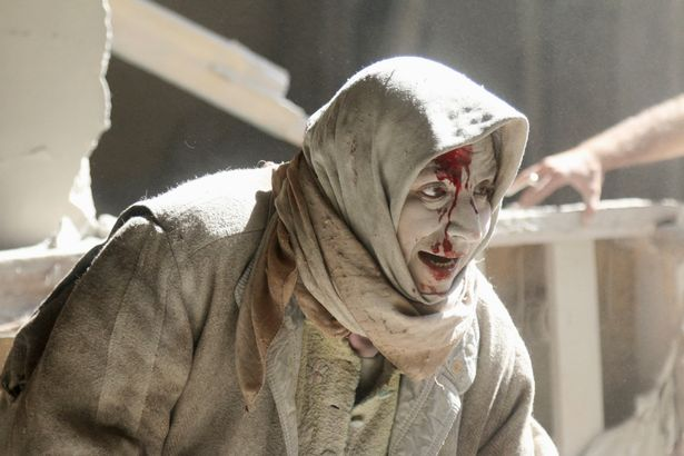 An injured citizen of Aleppo shortly after air strikes on the city. (Photo: Reuters)
